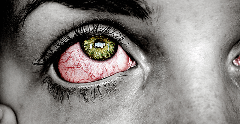 červené oči, ako zakryt že si zhúlený